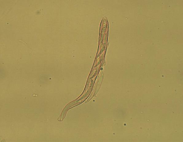 HYMENOSYHUS CALYCULUS11